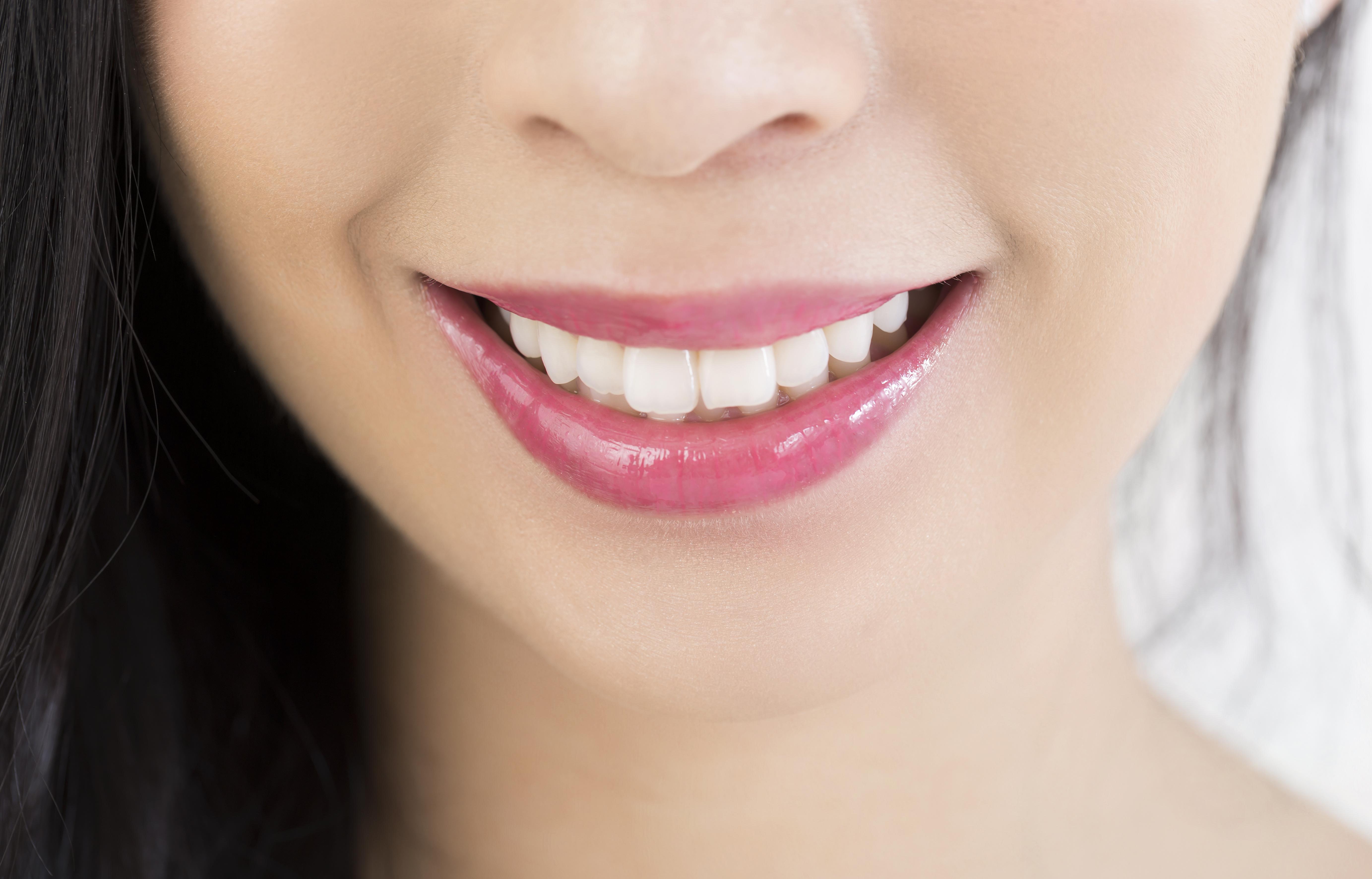 ビューティホワイトニング白い歯